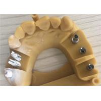 China Digital 3d Dental Crowns , 3d Printing Temporary Crowns Cocr Chorme Cast on sale