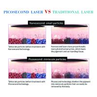 online shopping free shipping picosure 755 nm laser picosecond beauty machine