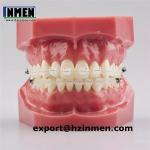 Best Orthodontic MINI ceramic transparent bracket brace wholesale