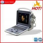 Best Latest Design Portable Style Cardiac Color Doppler Ultrasound Scanner Yj-U60plus wholesale