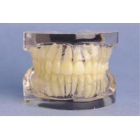 China Transparent Standard Upper and Lower Jaw Model for Medical College Training on sale