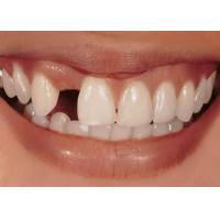 Best Implant-supparted Denture wholesale