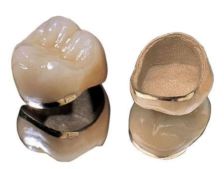 Cheap >Porcelain-fused-to gold crown for sale