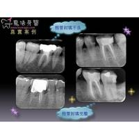 Best Root Canal Therapy wholesale